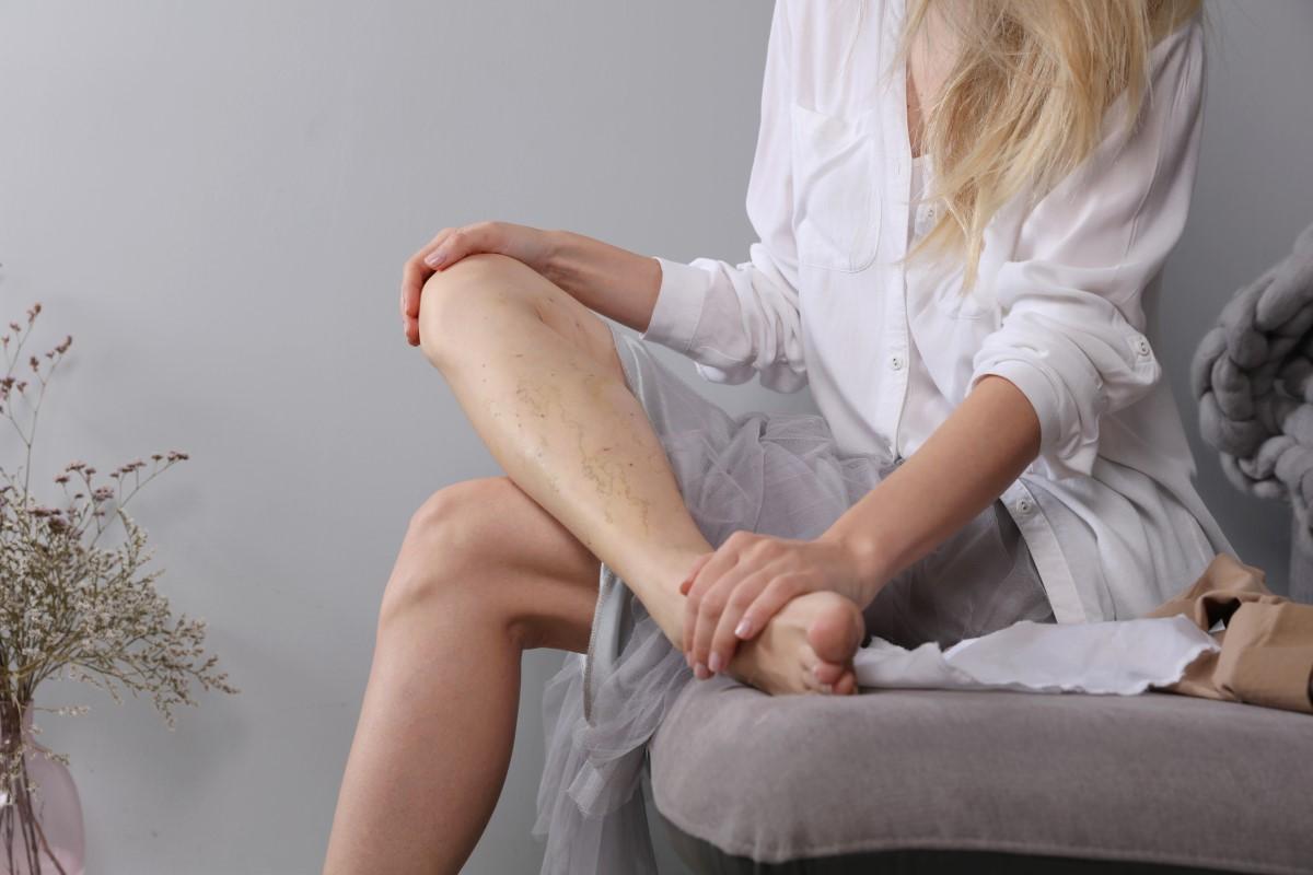 Pajączki na nogach – przyczyny powstawania, sposoby zapobiegania