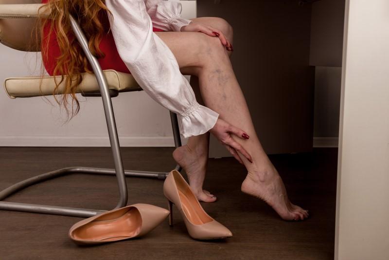 Żylaki na nogach – przyczyny, objawy, sposoby leczenia